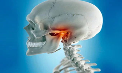 How To Temporarily Treat TMJ Syndrome In The Absence Of A Physician